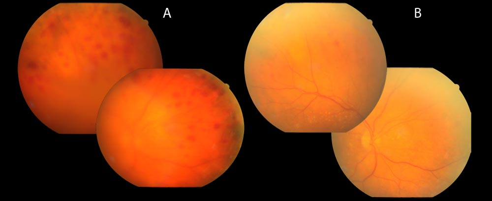 Figure 1a  Intraretinal hemorrhages and whitening of the retinal blood    Intravitreal Injection Endophthalmitis